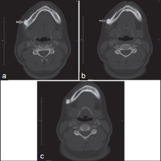 Figure 1: (a-c) Serial of the axial computed tomography images show that well-defined, rounded, radiopaque mass (arrow) attached to the right buccal surface of the lower border of the body of the mandible. Also, there is no cortical bone destruction or any abnormality in the surrounding tissues