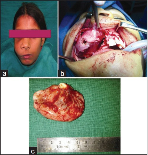 Figure 1: (a) Extra oral swelling on right mid facial region (b) Excisional biopsy performed under general anaesthetic. (c) Postoperative specimen