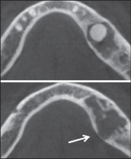 Figure 3: The cone beam computed tomography axial section of the patient showing expansion of alveolar bone (white arrow)