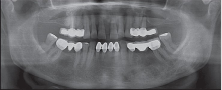 Figure 5: The panoramic radiograph taken 1 year after the operation