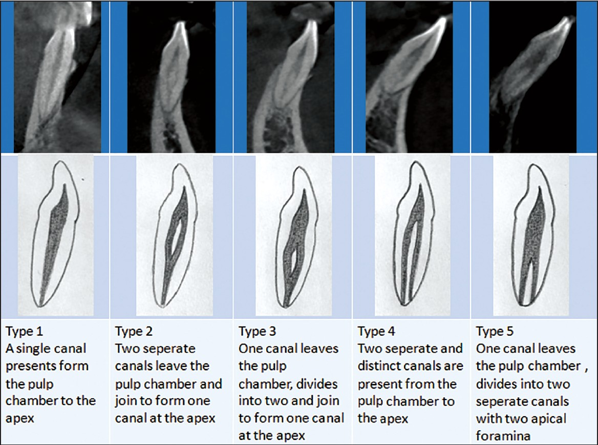 Cone-beam computed tomography study of root canal morphology of ...