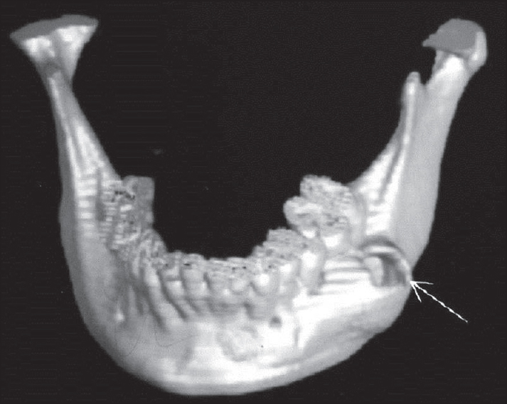 Figure 6: Three dimensional computerized tomography scan showing expansion of buccal cortex of the left side with cortical perforation