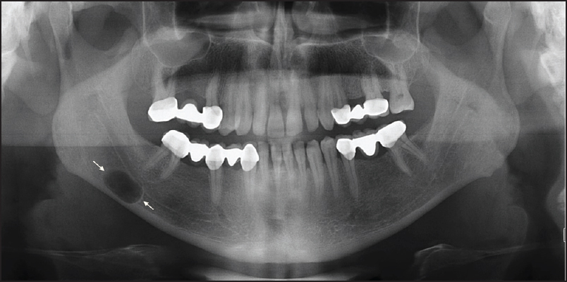 journal of oral and maxillofacial radiology browse articles