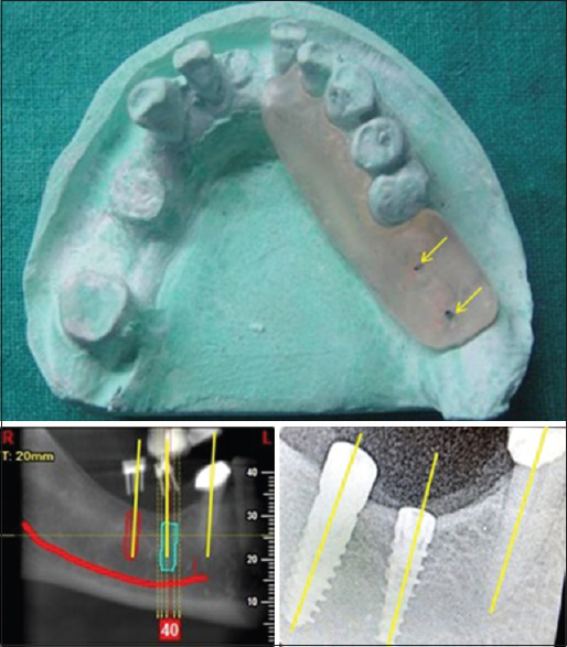 Radiographic guides and surgical guide stents for dental implants.