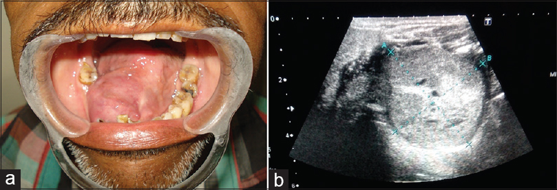 Figure 6: (a) Swelling in the floor of the mouth of the patient. (b) USG of the same patient suggestive of malignant mass