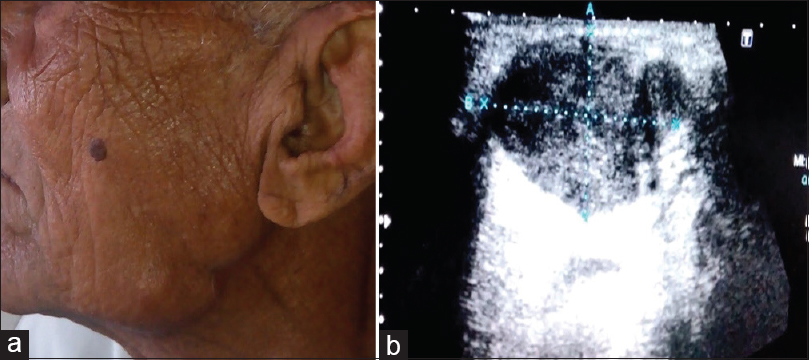 Figure 7: (a) Swelling in the patient over left side near the angle of mandible. (b) USG of the same patient suggestive of metastatic lymphadenopathy