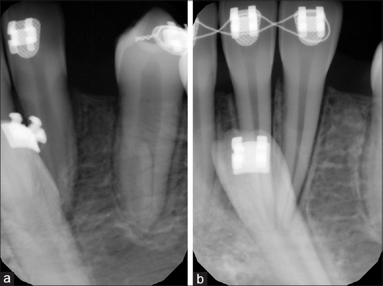 Figure 5: (a and b) Progress in the movement of left mandibular canine to a proper position visible on periapical radiographs taken during treatment