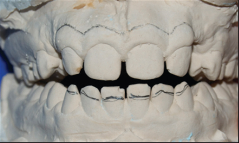 Figure 8: Pencil line drawn on lower incisors corresponding to maximum overbite