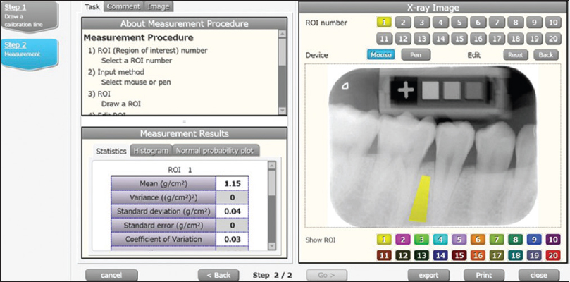 Figure 3: The DentalSCOPE software calculates the mineral density value of an arbitrary region of interest