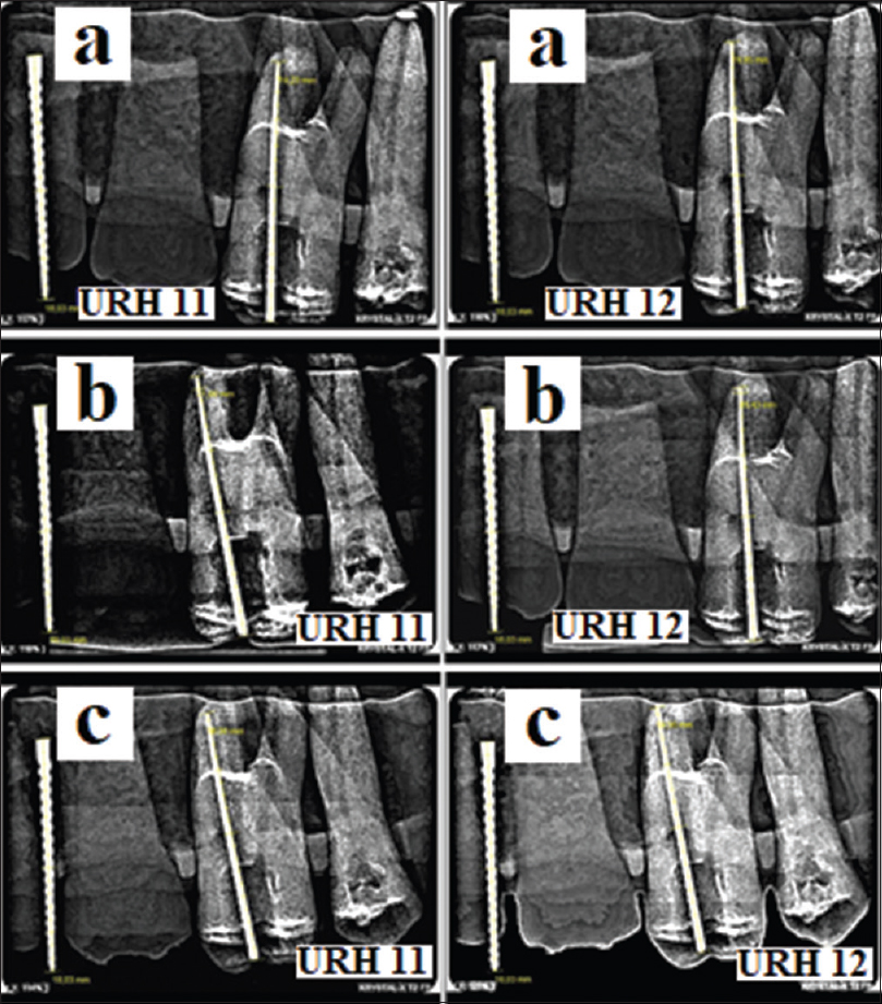 Figure 5: Comparative digital radiograph obtained during exposures 11 and 12 on upper right hemiarch using the following techniques: Bisecting Angle (a), Parallelism (b) and dental radiographic standardization (c)