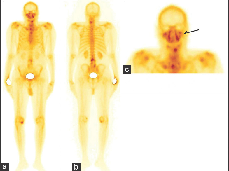 Figure 1: A 67-year-old male, a known case of prostate carcinoma, underwent bone scan for skeletal evaluation. The whole body bone scan (a and b) showed increased tracer uptake in the cervical and lumbarvertebrae which corresponded to postoperative vertebrae. (c) In addition to these findings, abnormal increased tracer uptake was seen in the bilateral maxillary sinuses mimicking shape of face mask